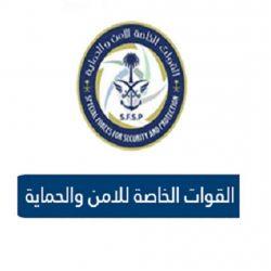 نجاح عملية فصل التوأم الطفيلي اليمني في الرياض